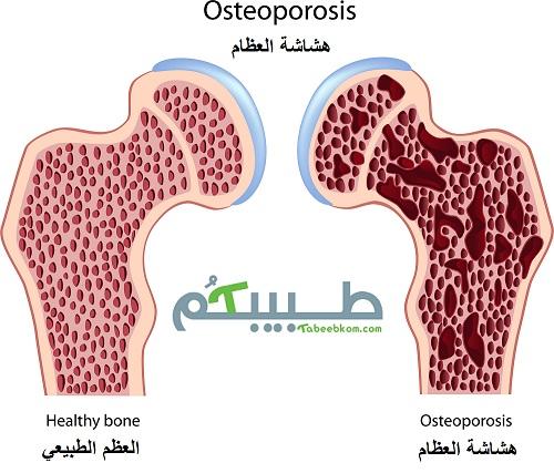 هشاشة العظام Osteoperosis اسباب كسور كالسيوم وفيتامين د طب تايم