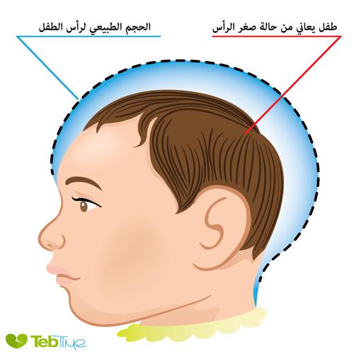 صغر الرأس الاسباب الاعراض التشخيص والعلاج طب تايم