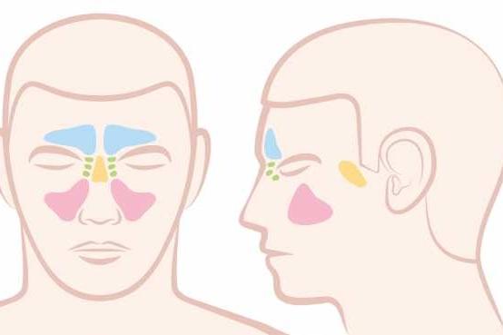 ما هى الجيوب الأنفية Paranasal-Sinuses