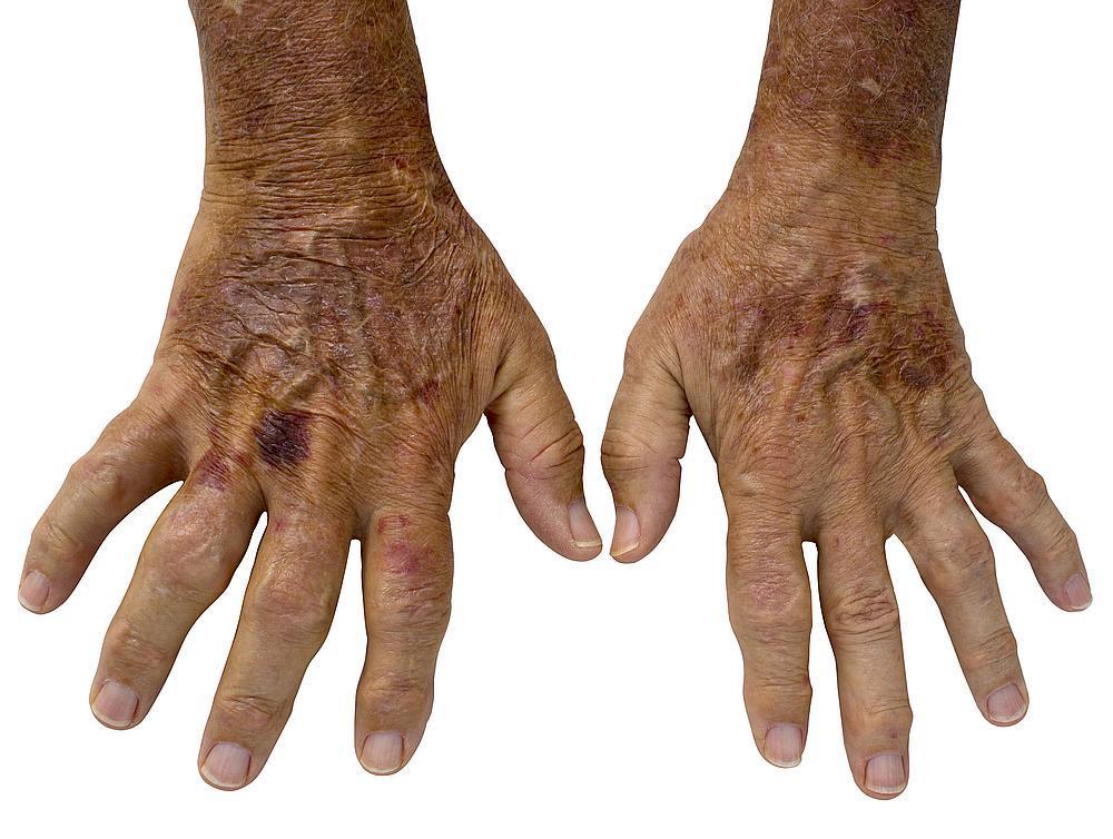 عشرة أعراض لالتهاب المفاصل الروماتويدي