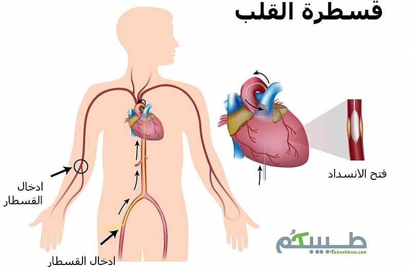 قسطرة القلب ام جراحة القلب؟