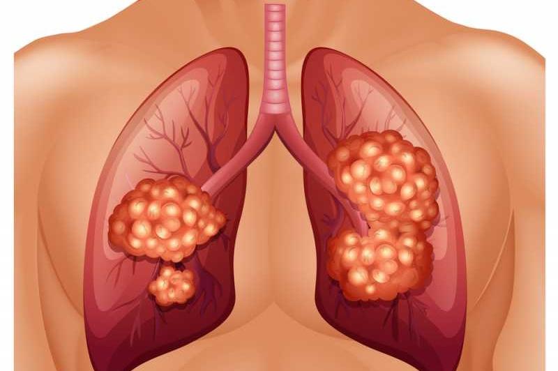 أعراض ومراحل تطور وعلاج سرطان الرئة